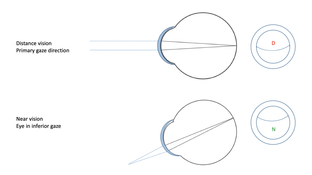 Figure 2: Bifocal contact lenses with alternating vision. (Schematic and simplified representation).