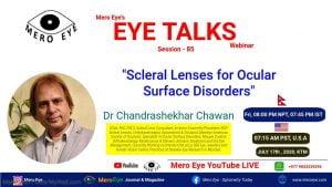 eye talks 8